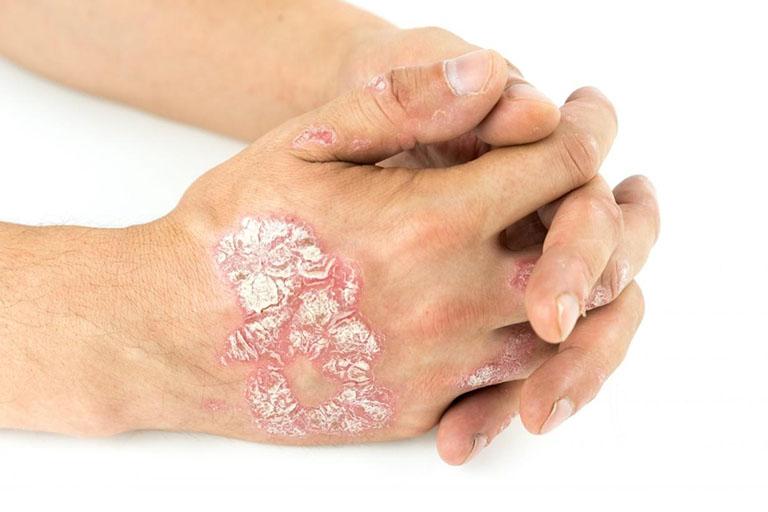 Bệnh có thể xuất hiện ở nhiều vị trí, trong đó có bàn tay