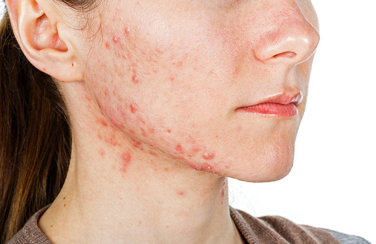 Bệnh viêm da dầu thường bùng phát mạnh nhất vào mùa thu và mùa đông