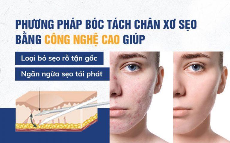 Bóc tách nhân xơ sẹo mang lại hiệu quả lâu dài
