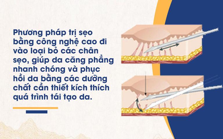 Công nghệ điều trị bằng công nghệ cao tại Viện Da liễu Hà Nội - Sài Gòn hoạt động theo nguyên lý hình thành sẹo để có thể loại bỏ sẹo rỗ tận gốc và ngăn ngừa tái phát