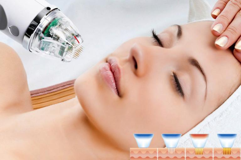 Phi kim vi điểm là phương pháp công nghệ cao trị mụn đầu đen hiệu quả tận gốc