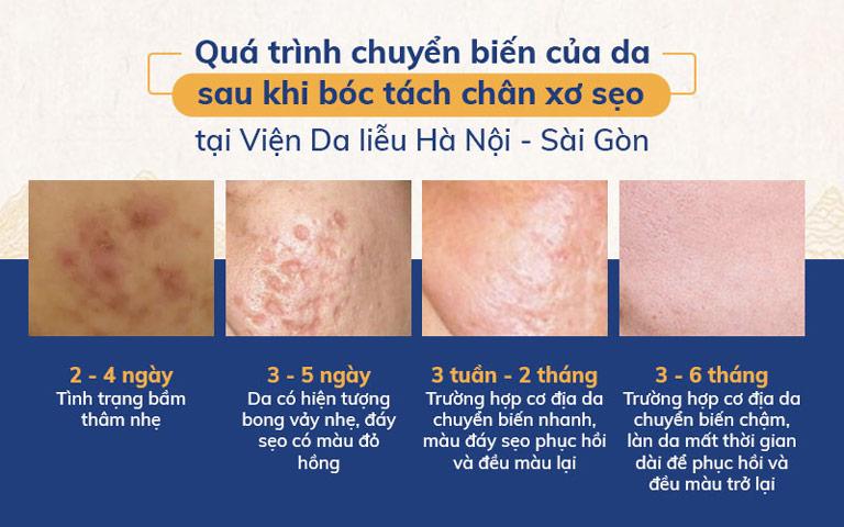 Quá trình chuyển biến của da sau khi bóc tách chân xơ sẹo
