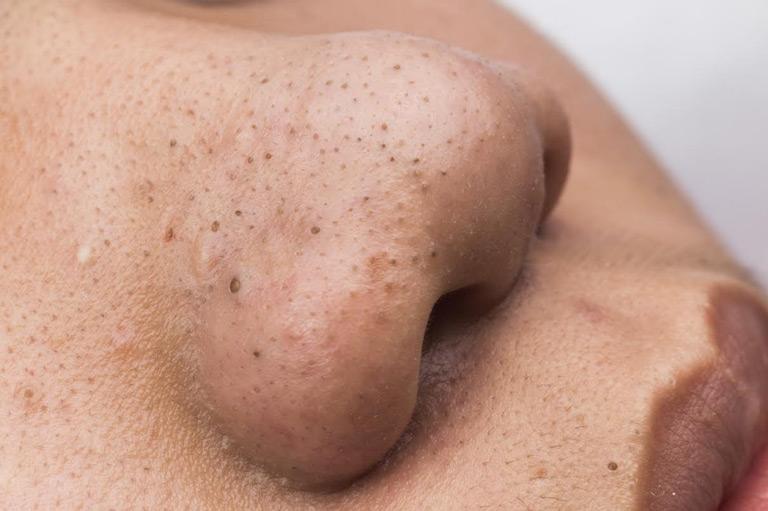 Mụn đầu đen khiến da trở nên đen sạm, sần sùi