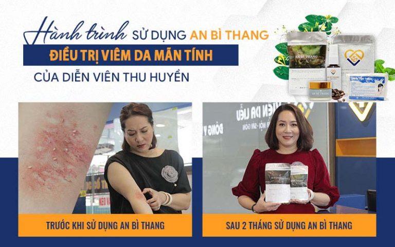 Nghệ sĩ Thu Huyền đã thành công điều trị viêm da mãn tính bằng An Bì Thang