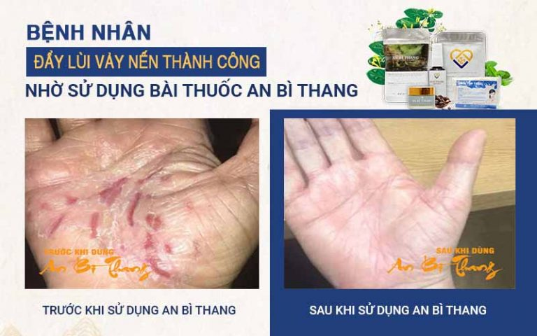 Kết quả sau 1 liệu trình điều trị vảy nến bằng An Bì Thang