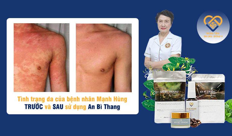 Hình ảnh da của bệnh nhân Mạnh Hùng sau khi điều trị viêm da cơ địa bằng bài thuốc An Bì Thang