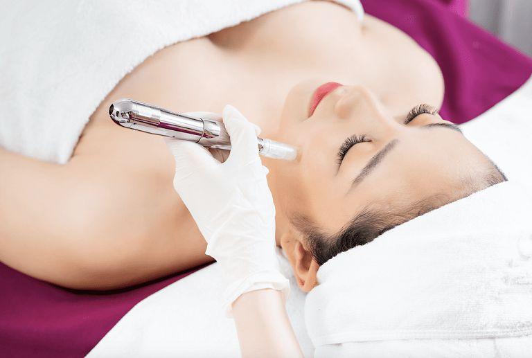Phương pháp phi kim trị mụn giúp giải quyết các vấn đề về mụn và sẹo được tốt hơn