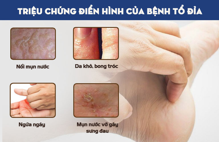 Các triệu chứng của chàm tổ đỉa tuy khó chịu, những phần lớn chỉ ảnh hưởng tới lớp da ở trên cùng (lớp biểu bì)