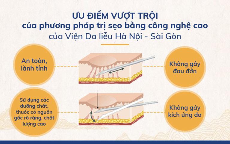 Ưu điểm vượt trội của phương pháp điều trị sẹo tại Viện Da liễu Hà Nội - Sài Gòn