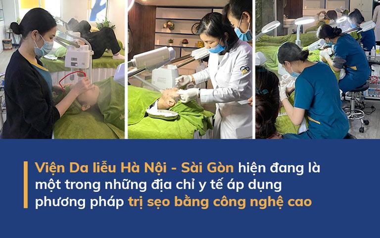 Trị sẹo bằng công nghệ cao là phương pháp được Viện Da liễu Hà Nội - Sài Gòn áp dụng hiện nay