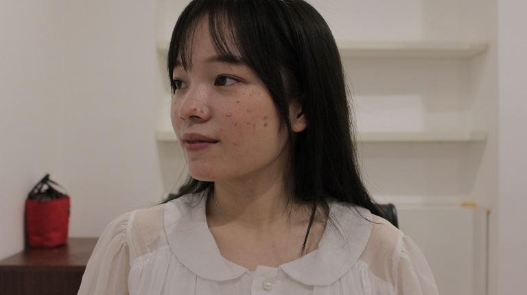 Hình ảnh Linh trước khi điều trị mụn bằng sản phẩm Hoàn Nguyên