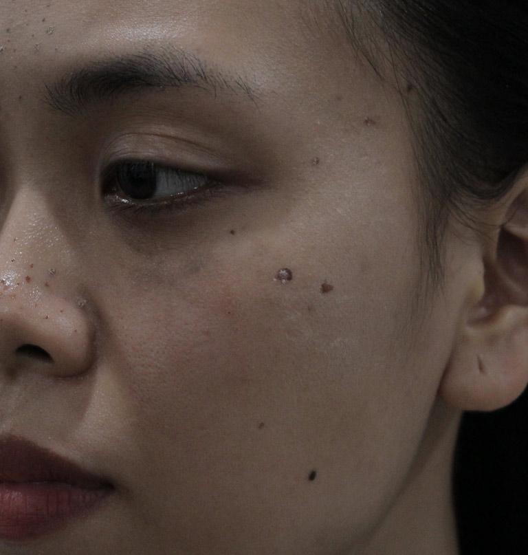 Làn da đen sạm, sần sùi vì mụn của chị Trang trước khi điều trị