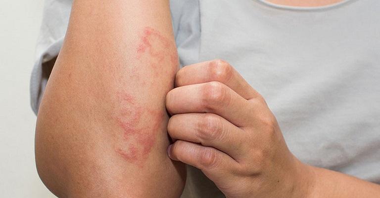 Bệnh chàm là một căn bệnh da liễu thường gặp