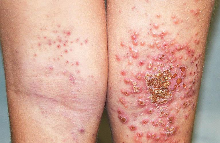 Bệnh chàm có thể gây ra tình trạng viêm nhiễm nghiêm trọng trên da