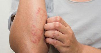 Bệnh chàm Eczema là bệnh gì? Nguyên nhân, triệu chứng và cách điều trị