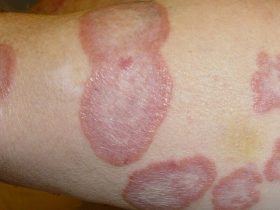 Bệnh hắc lào - Nguyên nhân, triệu chứng và cách điều trị chi tiết
