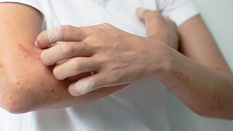 Bệnh viêm da là tên gọi chung cho các bệnh lý ngoài da với những triệu chứng như da ngứa rát, ửng đỏ