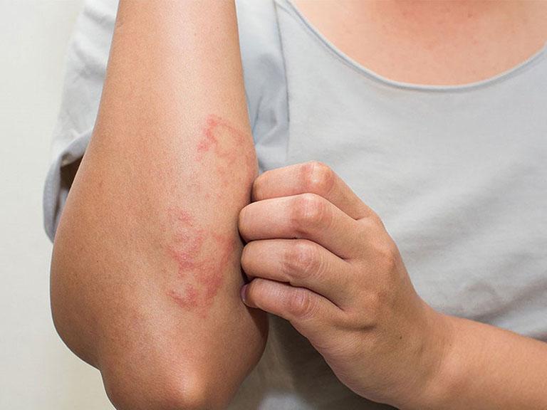 Dị ứng hóa mỹ phẩm cũng có thể gây bệnh