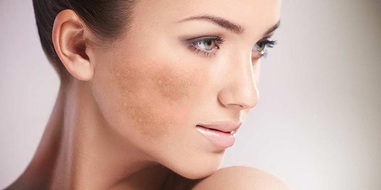Da đồi mồi là gì? Làm sao để nhận biết và cách khắc phục tình trạng đồi mồi trên da