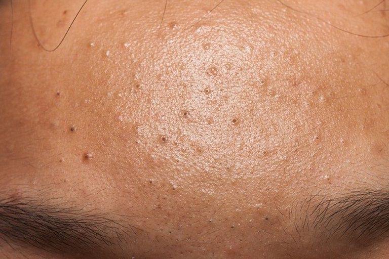 Mụn đầu đen là những nốt mụn nhỏ, kích thước vài mm, được hình thành do bã nhờn và bụi bẩn trên da