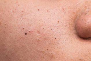 Mụn đầu đen là gì? Nguyên nhân gây mụn và hướng xử lý hiệu quả nhất