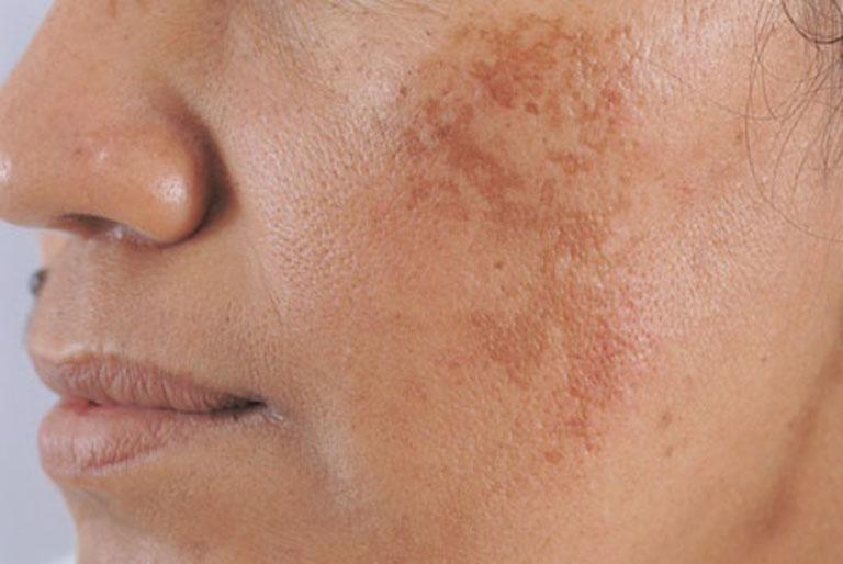 Nám là tình trạng da trên bề mặt xuất hiện những đốm sắc tố có màu đậm