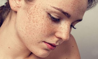 Nám da mặt có mấy loại? Nguyên nhân, cách điều trị dứt điểm giúp chị em tự tin hơn