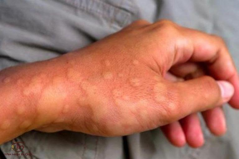 Nổi mề đay là một bệnh lý da liễu thường gặp mà ai cũng có thể mắc phải
