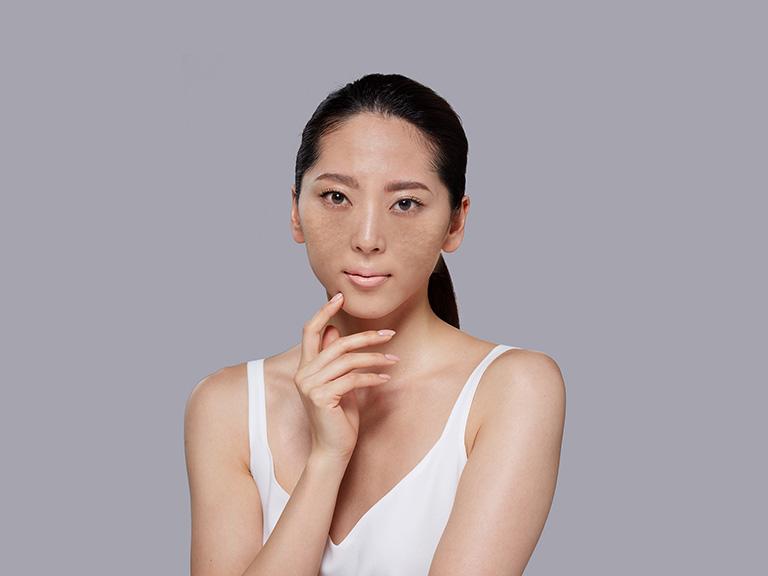 Da sạm màu mà một dạng tăng sắc tố da thường gặp