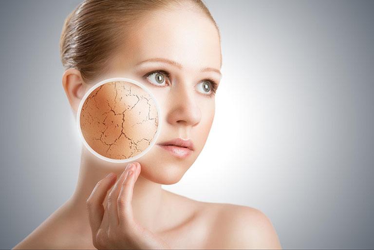 Người có làn da khô cũng dễ bị sạm da