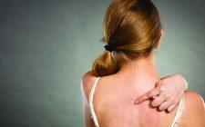 Viêm da dị ứng là bệnh gì? Có nguy hiểm không và điều trị như thế nào để khỏi dứt điểm bệnh?