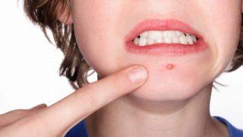 Nguyên nhân mụn bọc dưới da