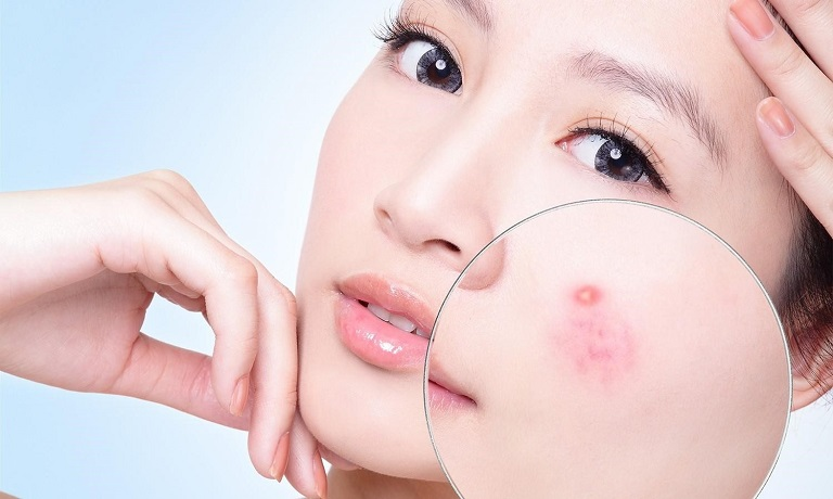 Làn da bị mụn khiến bạn trở nên kém sắc và mất tự tin