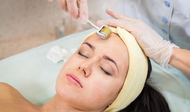 Công nghệ trị sẹo bằng phương pháp lăn kim
