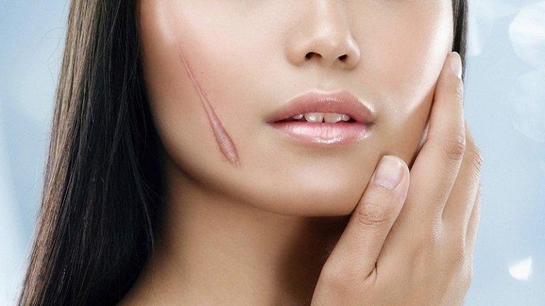 Chi phí điều trị cũng sẽ tùy vào mức độ nghiêm trọng của sẹo