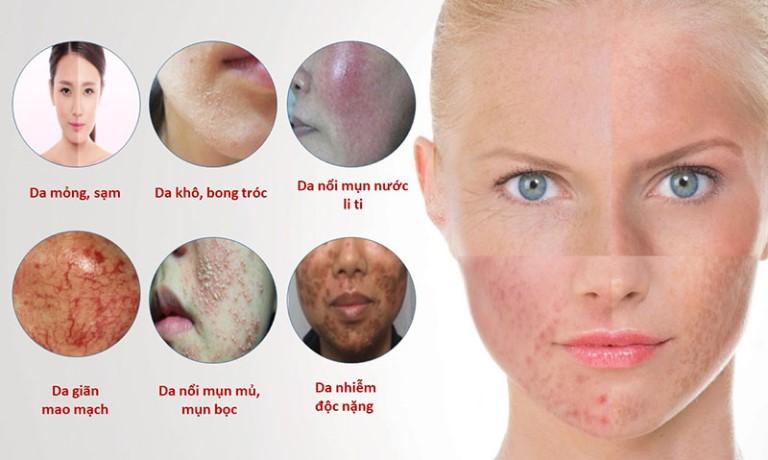 Làn da bị tổn thương nghiêm trọng do nhiễm Corticoid