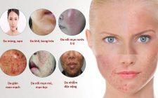 Da nhiễm Corticoid là gì? Nguyên nhân, dấu hiệu và cách điều trị tốt nhất