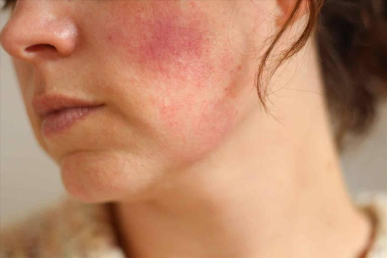 Người bị giãn mạch máu sẽ cảm thấy toàn bộ da mặt đỏ rực, nóng ran, đau rát