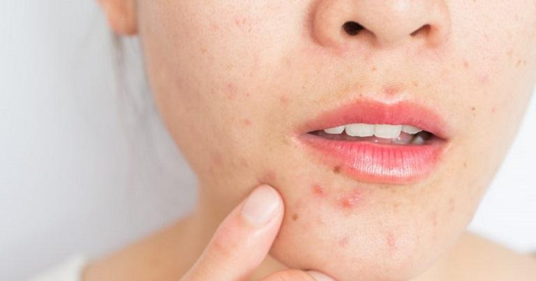 Thời gian điều trị mụn còn phụ thuộc vào mức độ nghiêm trọng của da mặt