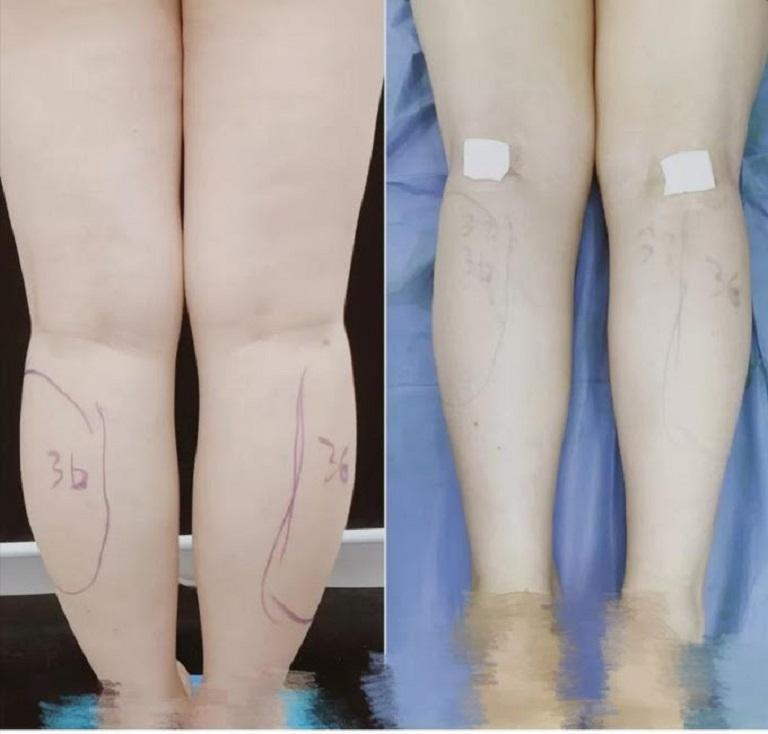 Cắt dây thần kinh chân để thu gọn bắp chân cũng là trào lưu thẩm mỹ mới tại Trung Quốc