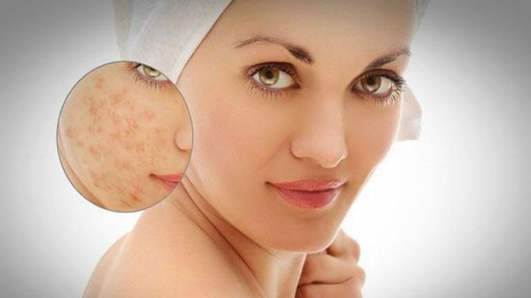Sẹo có thể được điều trị bởi nhiều phương pháp khác nhau với hiệu quả điều trị tương ứng