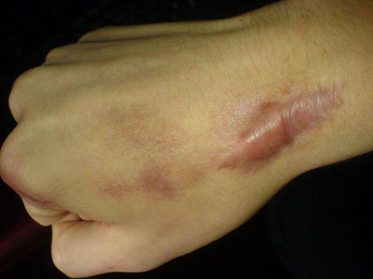 Sẹo lồi xuất hiện trên da gây mất thẩm mỹ