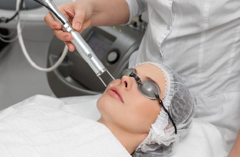 Tia Laser được sử dụng phổ biến trong điều trị sẹo trên mặt