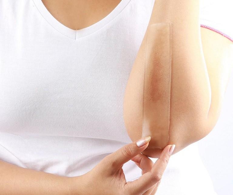 Sử dụng miếng dán hoặc gel silicon có tác dụng giúp làm mềm và phẳng các vết sẹo