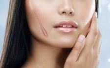 Sẹo lồi là gì? Nguyên nhân, triệu chứng và cách điều trị sẹo hiệu quả