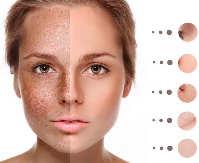 Vùng da bị tàn nhang sẽ xuất hiện các vết thâm nám tối màu hơn khu vực khác