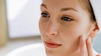 Tàn nhang là gì? Nguyên nhân dẫn đến tàn nhang và cách điều trị hiệu quả nhất
