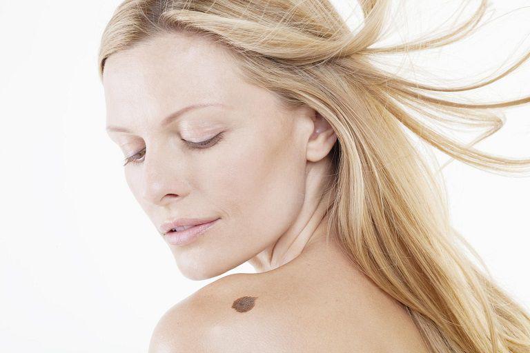 Xóa chàm bằng laser có thể điều trị được bất kỳ vết bớt nào trên da