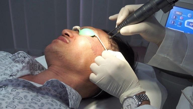 Công nghệ xóa chàm bằng laser có rất nhiều điểm ưu việt mà bạn nên sử dụng