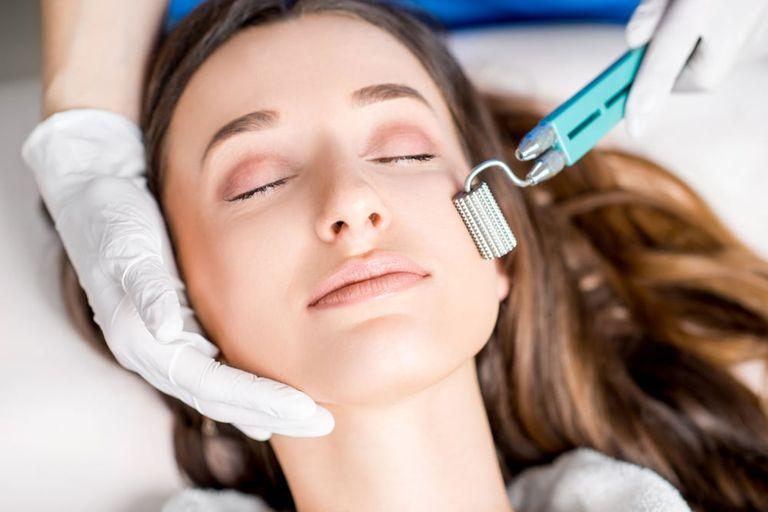 Trị nám bằng công nghệ lăn kim giúp cải thiện cấu trúc làn da